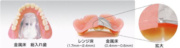 金属床義歯と保険義歯の比較